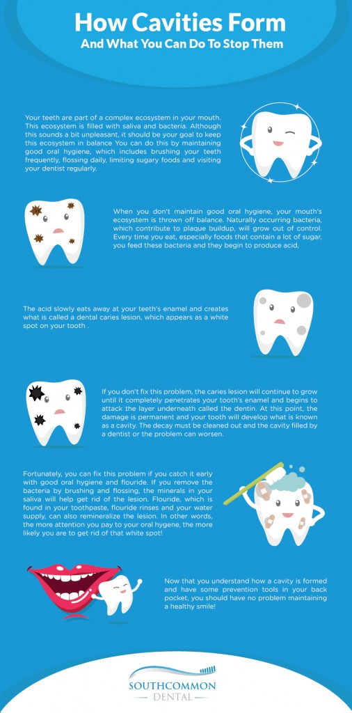 How-Cavities-Form-And-What-You-Can-Do-To-Stop-Them-Infographic-v2