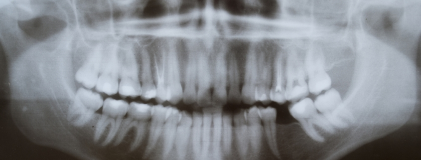 Wisdom Teeth X-ray